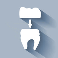 Porcelain Crowns in Scottsdale | Dr. Rick Dentistry