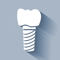 Dental Implants in Scottsdale | Dr. Rick Dentistry
